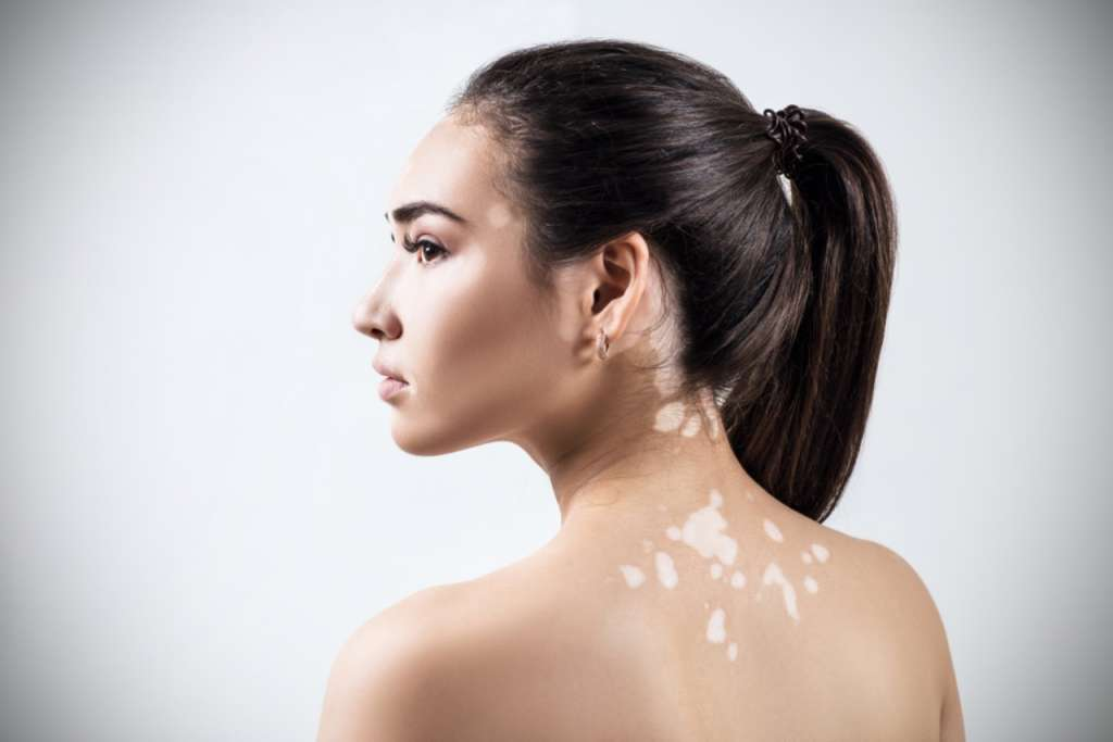 apa itu vitiligo