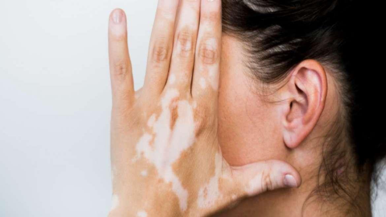 Apa Itu Vitiligo? Gejala, Penyebab dan Pengobatannya