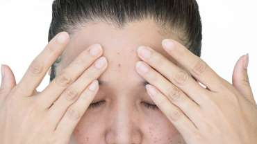 Kenali Penyebab Dan Cara Menghilangkan Flek Hitam Pada Wajah