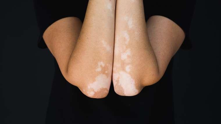 Pengobatan  Vitiligo dengan Laser 311nm Saphire Laser (Pallas®)
